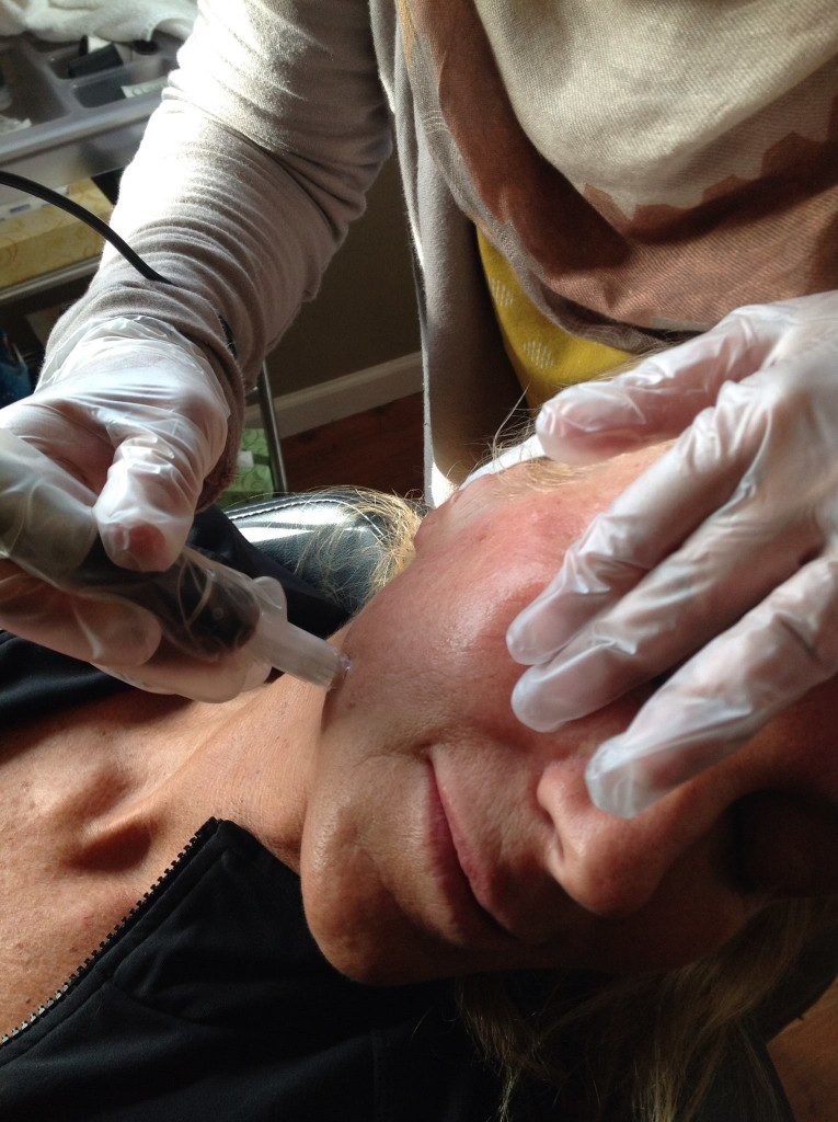 Microneedling at the Brow boutique Lake Oswego, Portland