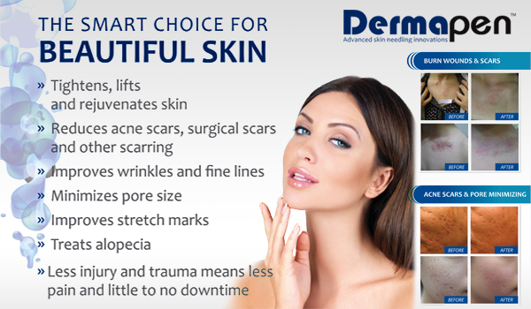 dermapen microneedling at brow boutique lake oswego portland