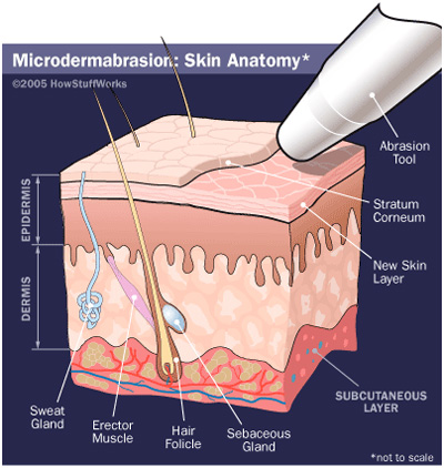 microdermabrasion at the Brow Boutique Lake Oswego Portland